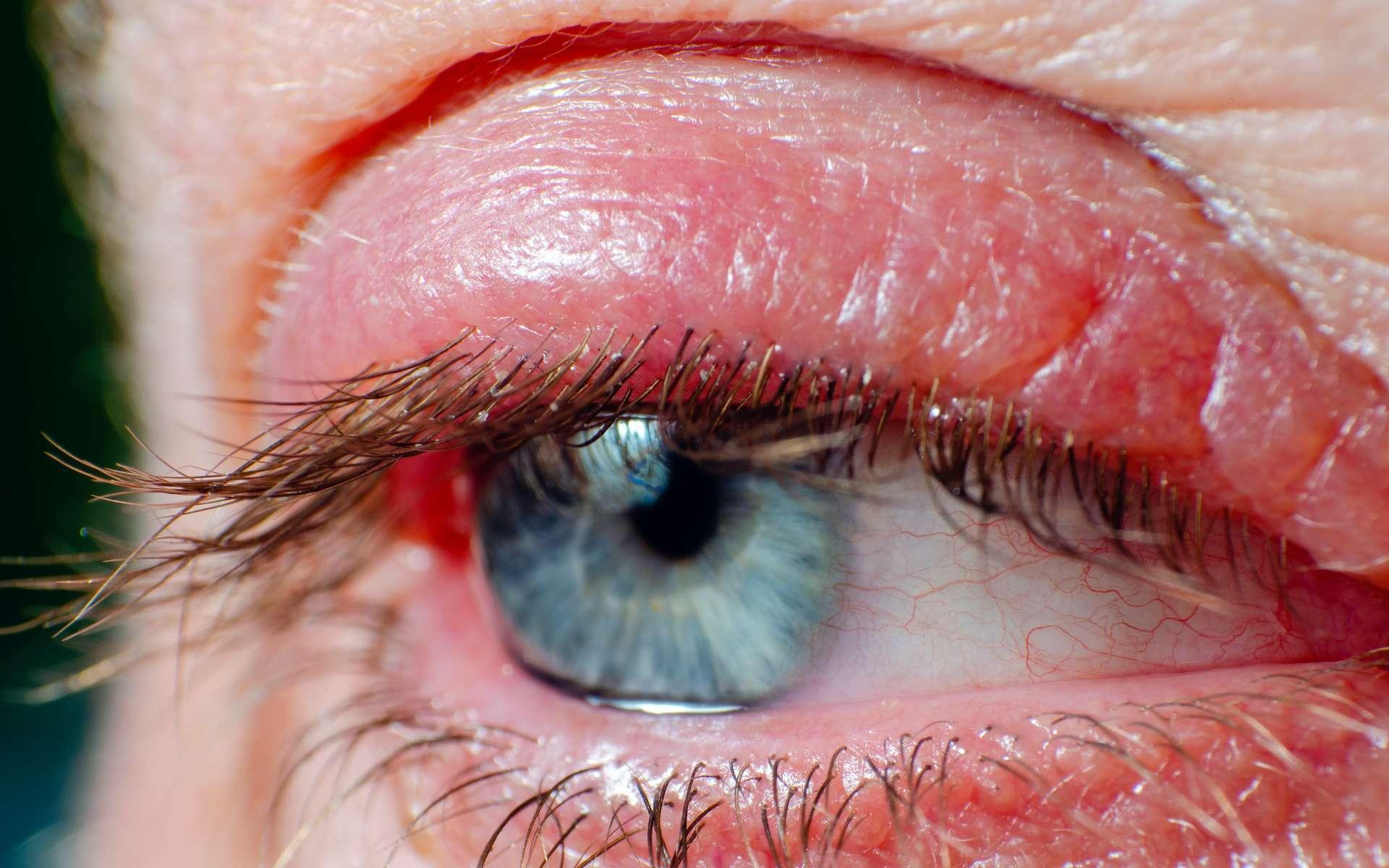 La blépharite est une inflammation de la paupière. © andrei310, Adobe Stock