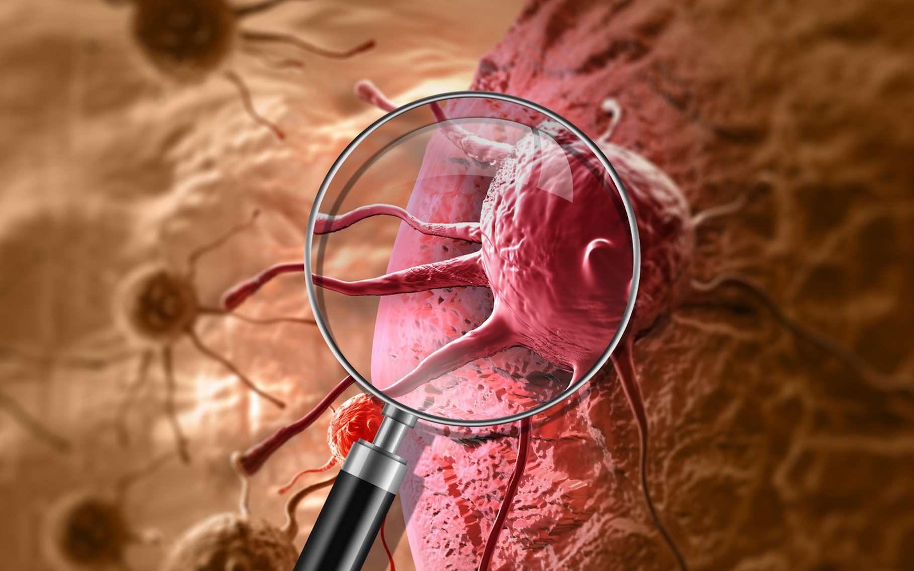 L'exposition aux nanoparticules présentes dans notre environnement – ou injectées pour traiter certaines maladies – pourrait favoriser la formation de métastases cancéreuses. © vitanovski, Fotolia