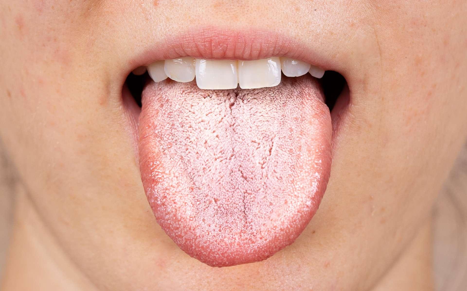 Certains patients atteints de la Covid-19 peuvent présenter des symptômes buccaux, notamment sur la langue. © Alessandro Grandini, Adobe Stock