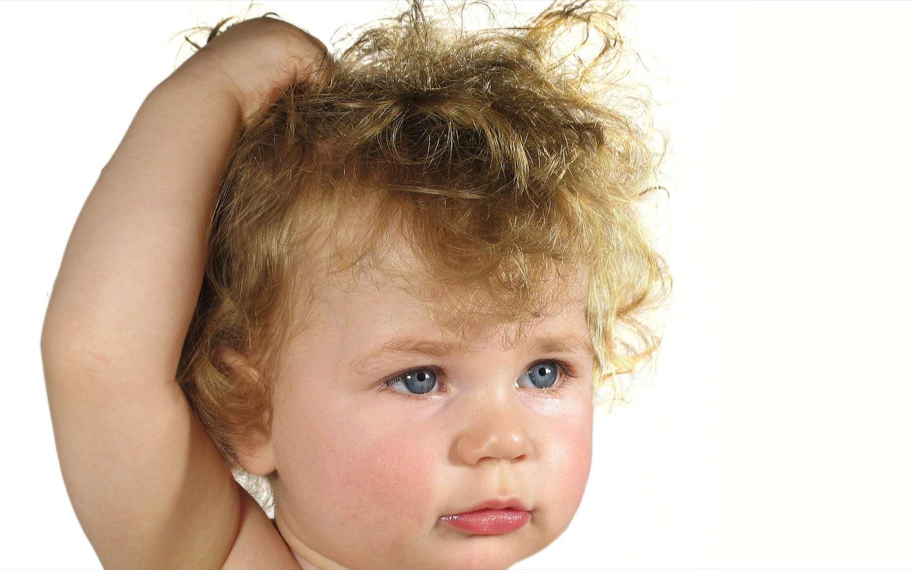 Dans le syndrome des cheveux incoiffables, les cheveux ébouriffés poussent dans toutes les directions. © Anita Patterson Peppers, Shutterstock