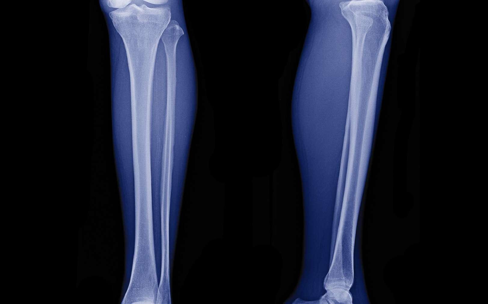 L'épiphyse est la partie située à l'extrémité d'un os long. © Choo, Fotolia