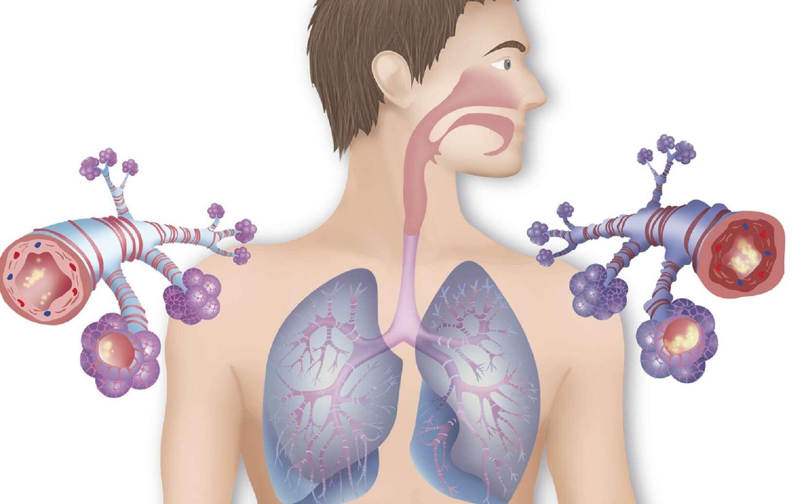 Les bronches sont recouvertes d'un mucus plus ou moins abondant. © RFBSIP, Fotolia