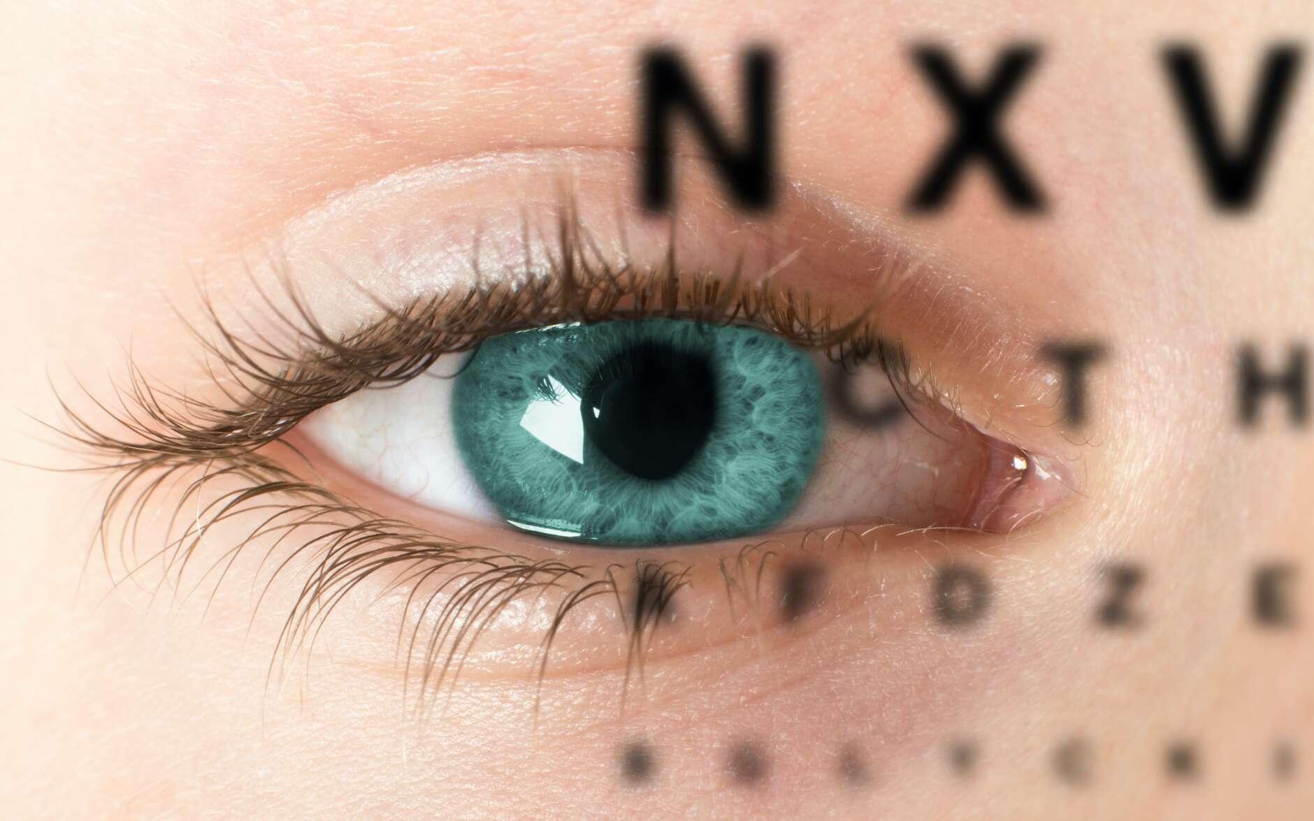 L'astigmatisme induit une vision floue des contours et des lettres. © max dallocco, Adobe Stock