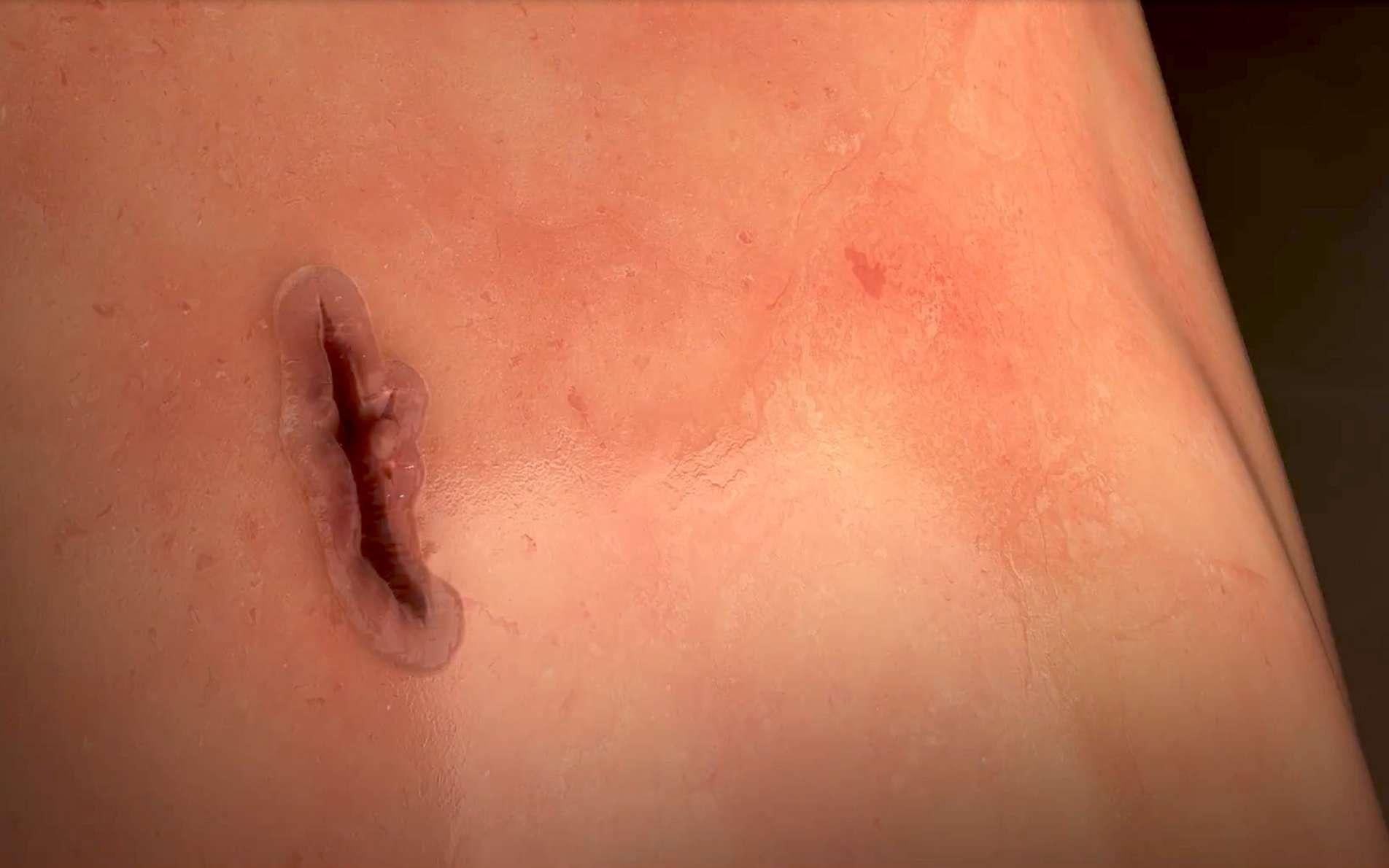 La colle biologique MeTro activée par laser fait adhérer les côtés de la plaie sans laisser de cicatrice. © Université de Sydney, capture YouTube.