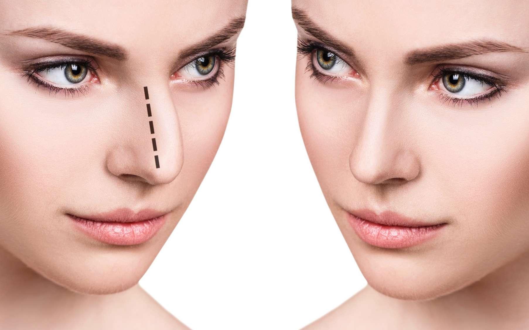 La rhinoplastie est la chirurgie esthétique ou réparatrice du nez. © llhedgehogll, Fotolia