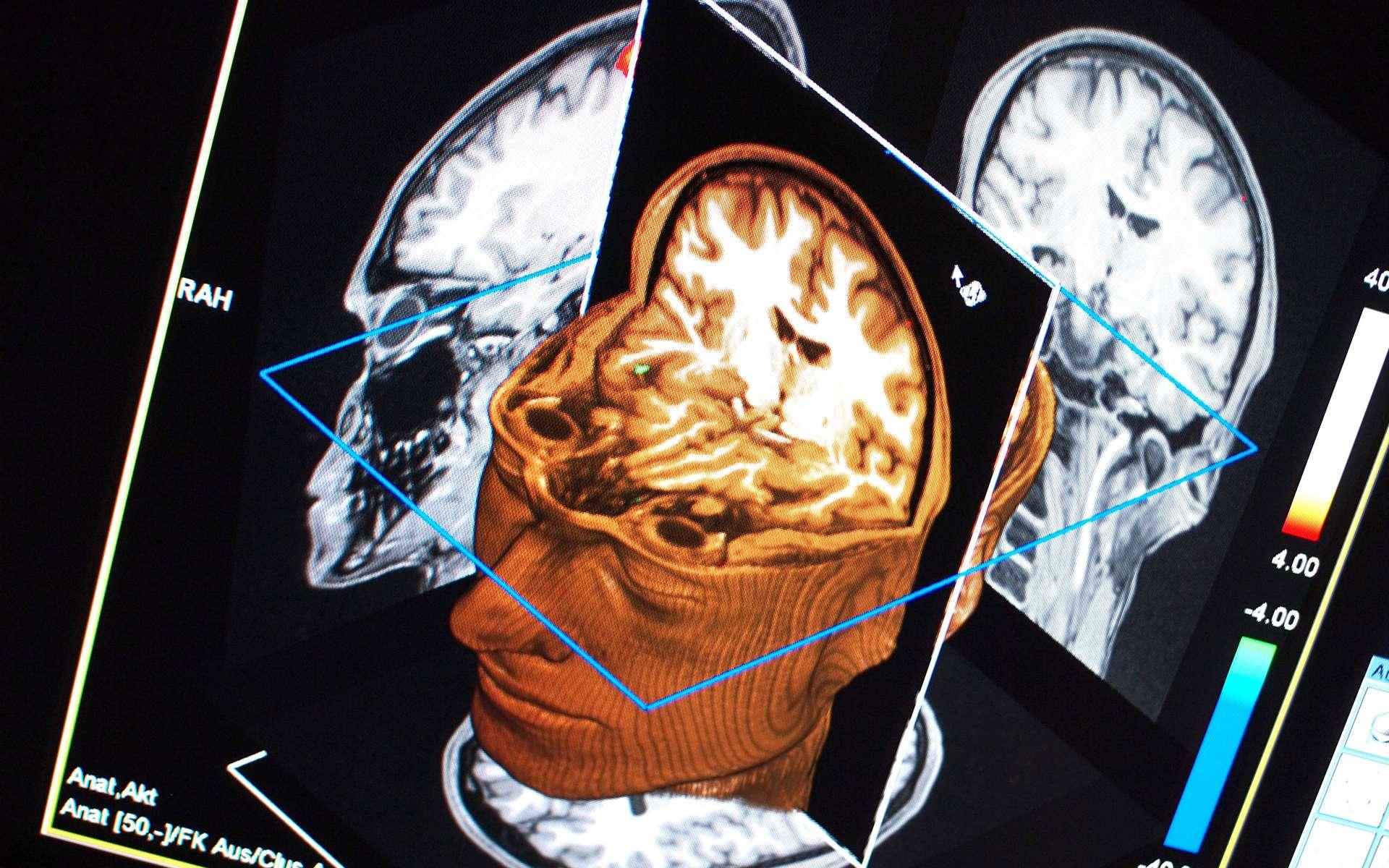 Chaque individu répond différemment à la motivation d'obtenir une récompense. Cette volonté est visible dans le cerveau par IRM fonctionnelle : le striatum ventral s'allume plus ou moins intensément selon le patient et son degré personnel d'appât du gain. © Ars Electronica / Flickr - licence Creative Commons