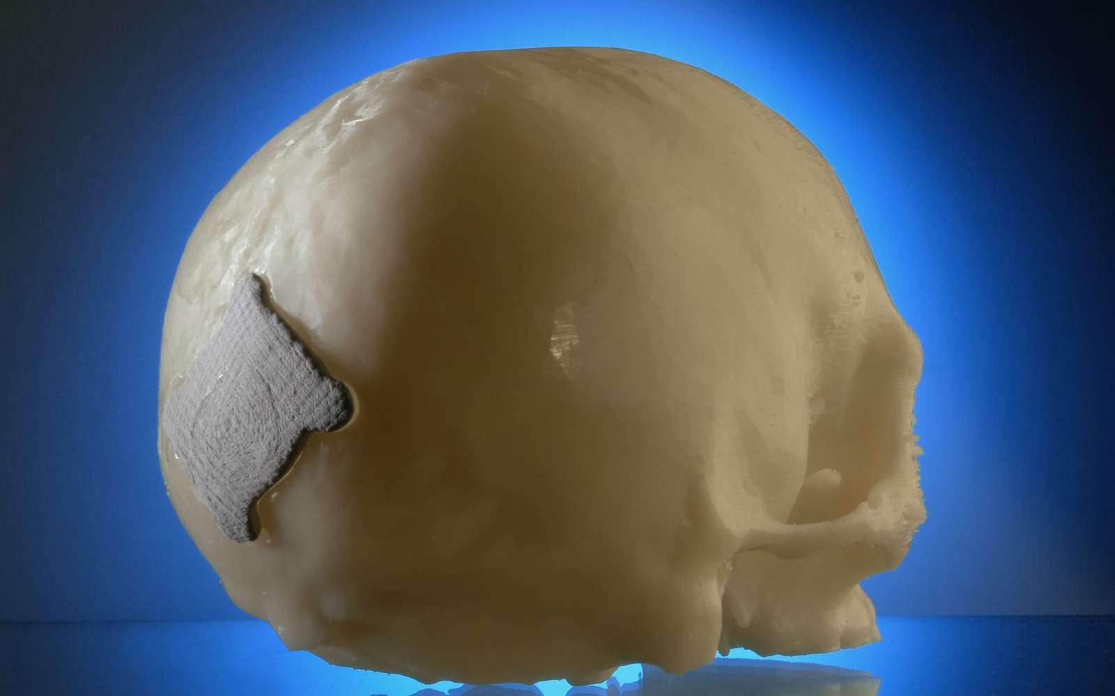 Un exemple d'implant en PLA généré par la technique des chercheurs allemands du Fraunhofer Institute for Laser Technology. Crédit : Fraunhofer ILT
