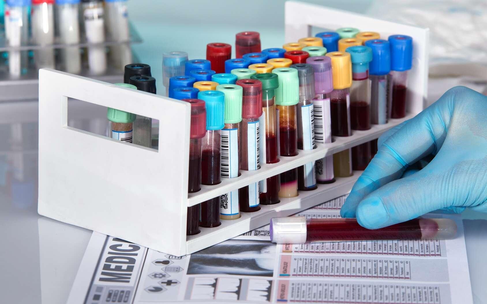 Un myélome peut être suspecté à partir des résultats d'une analyse sanguine. © angellodeco, Fotolia
