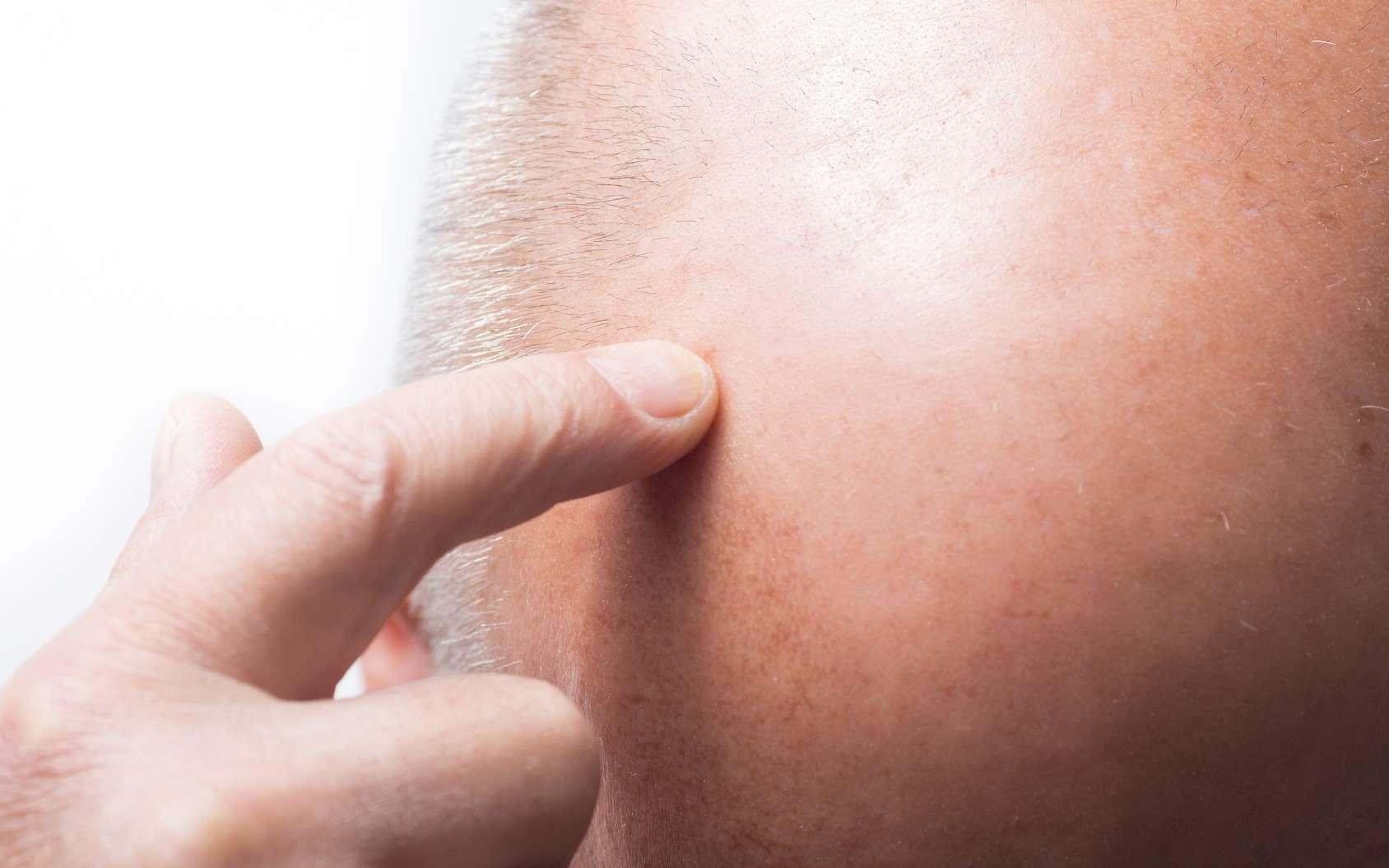 Un traitement contre la calvitie masculine favorise des symptômes dépressifs. © EVGENIY, Fotolia