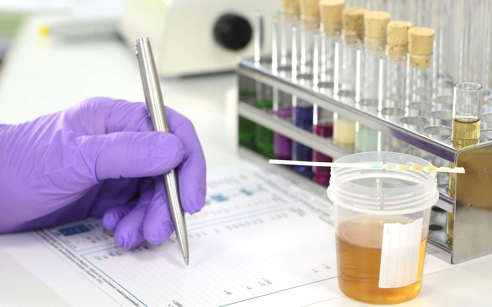 Le toxicologue analyse en laboratoire les conséquences des effets nocifs de substances toxiques sur la santé humaine. © Gerhard Seybert, Fotolia.