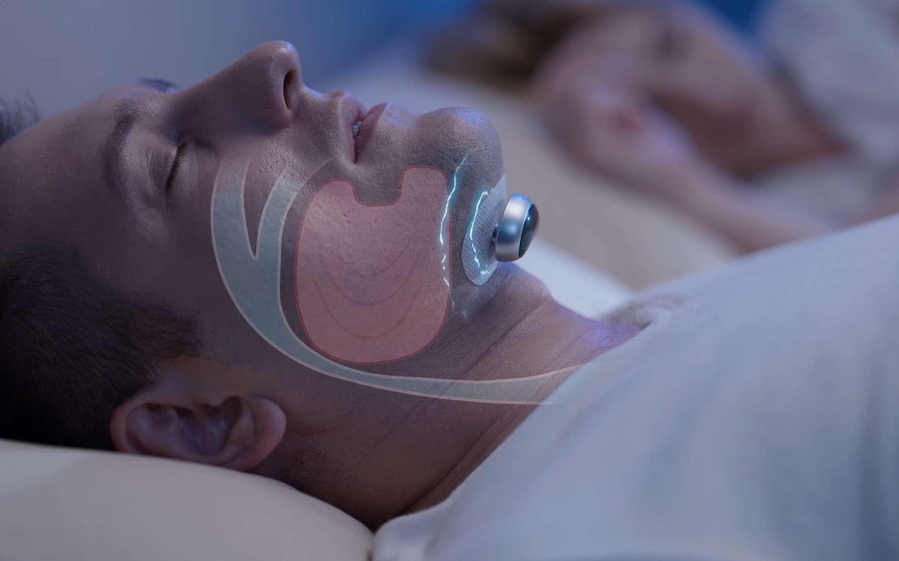 Le Snore Circle envoie des impulsions électriques pour empêcher le ronflement. © Snore Circle