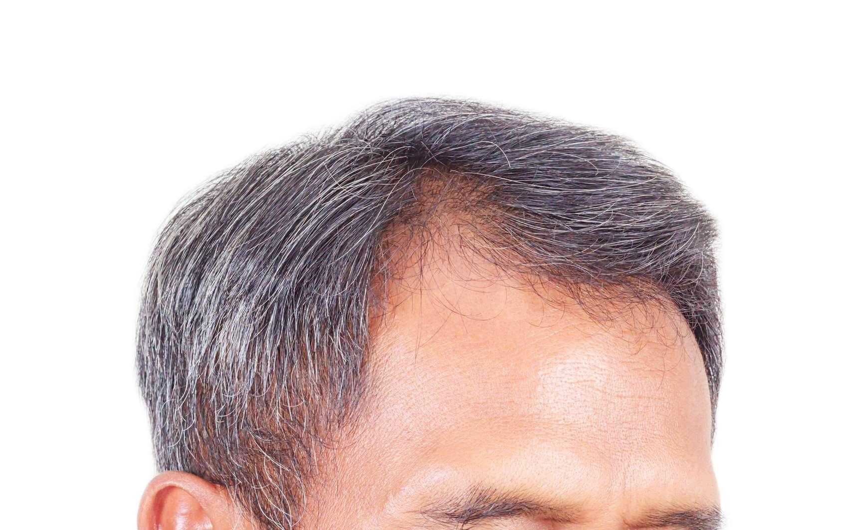 Les chercheurs ont identifié deux protéines qui seraient importantes pour la croissance et la pigmentation du cheveu. © phatthanit, Fotolia