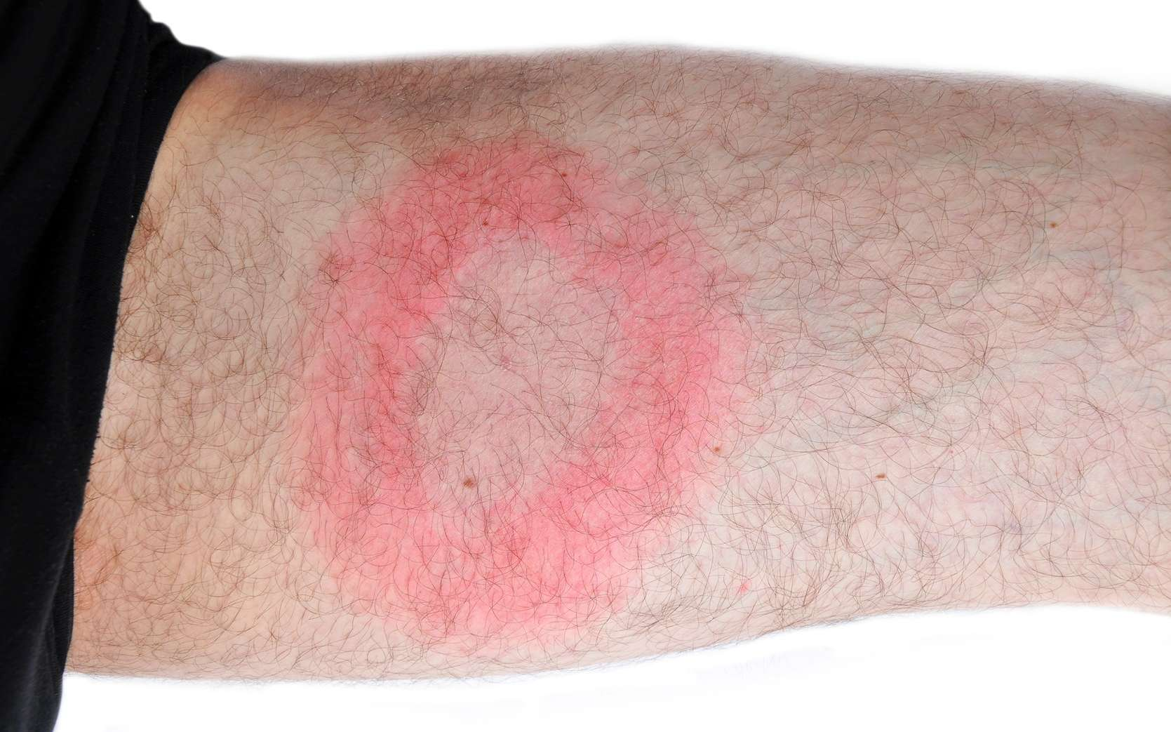 L'infection par Borrelia burdorferi (borréliose de Lyme) peut se manifester par un érythème migrant qui part du point de morsure de la tique. © meryll, Fotolia