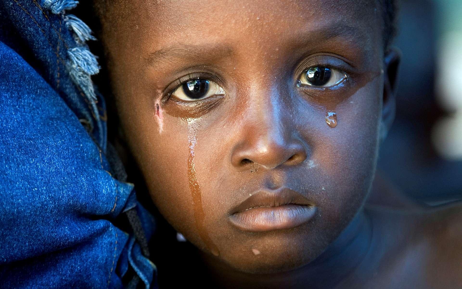 Ce petit haïtien est touché par l'épidémie de choléra qui a frappé son île à la suite du terrible séisme de janvier 2010. Cette maladie cause des diarrhées, à l'origine de très nombreux décès d'enfants. © United Nations Photo, Fotopédia, cc by nc nd 2.0