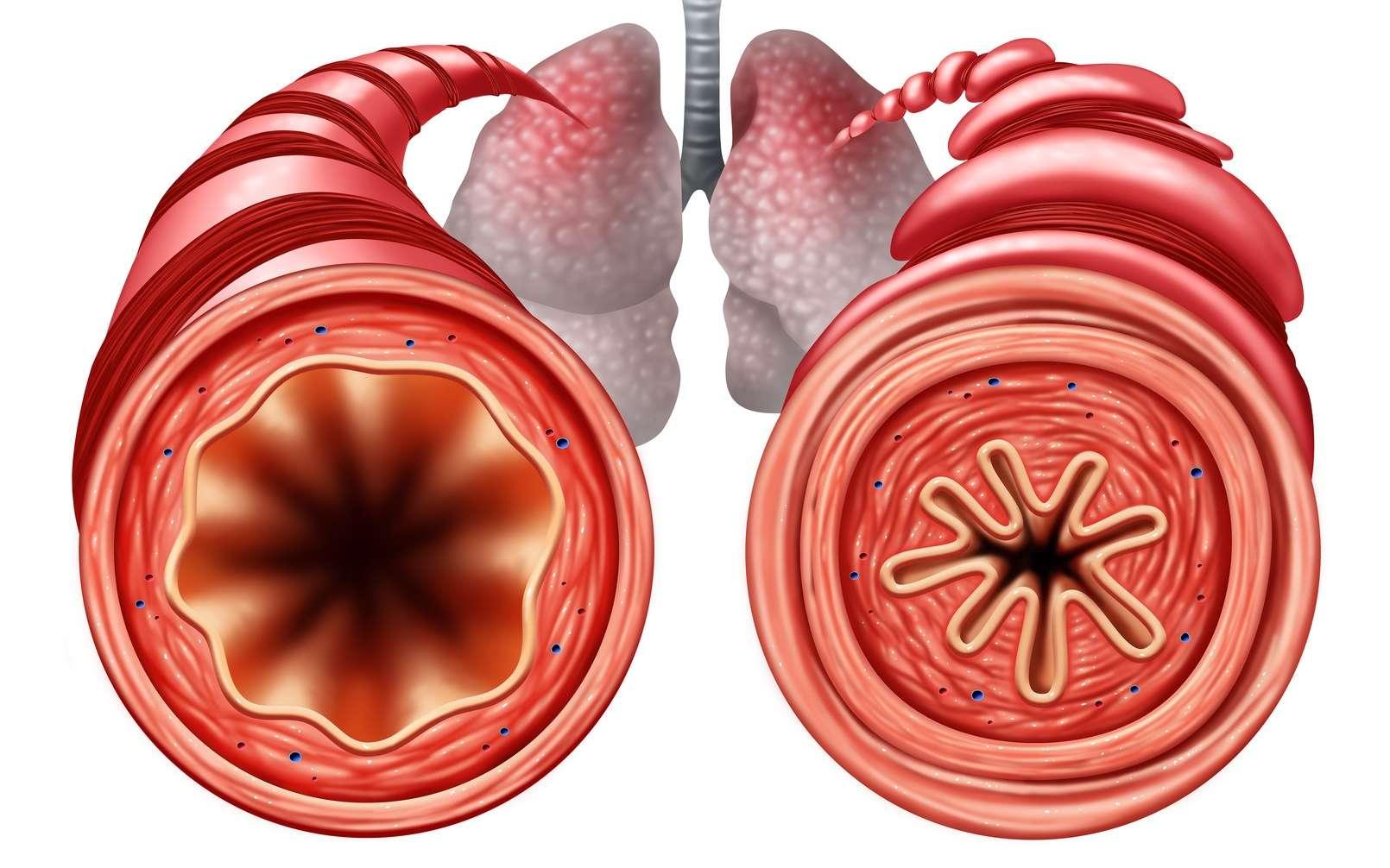 Du gras s'installerait dans les poumons lorsqu'on grossit. © freshidea, Fotolia