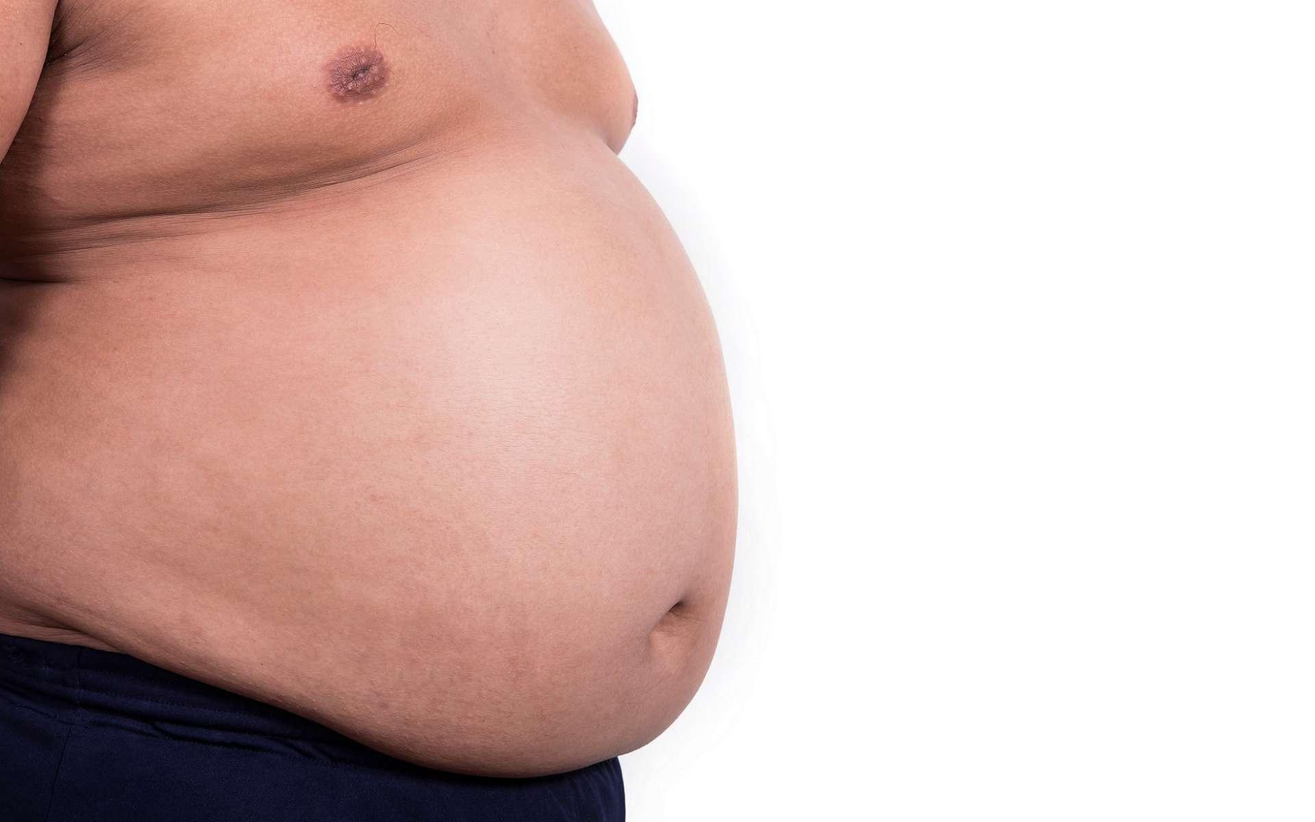 La découverte de l'enzyme PM20D1 permet d'envisager de nouvelles thérapies contre l'obésité. © surassawadee, Shutterstock