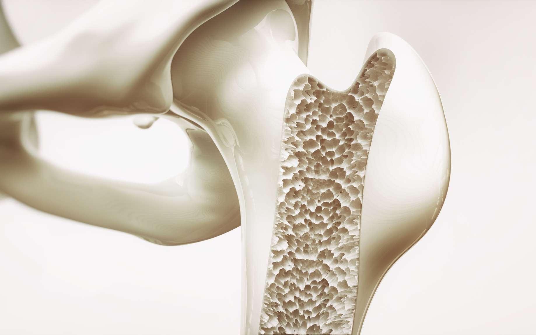 L'ostéoporose conduit à une fragilisation de l'os. © crevis, Fotolia