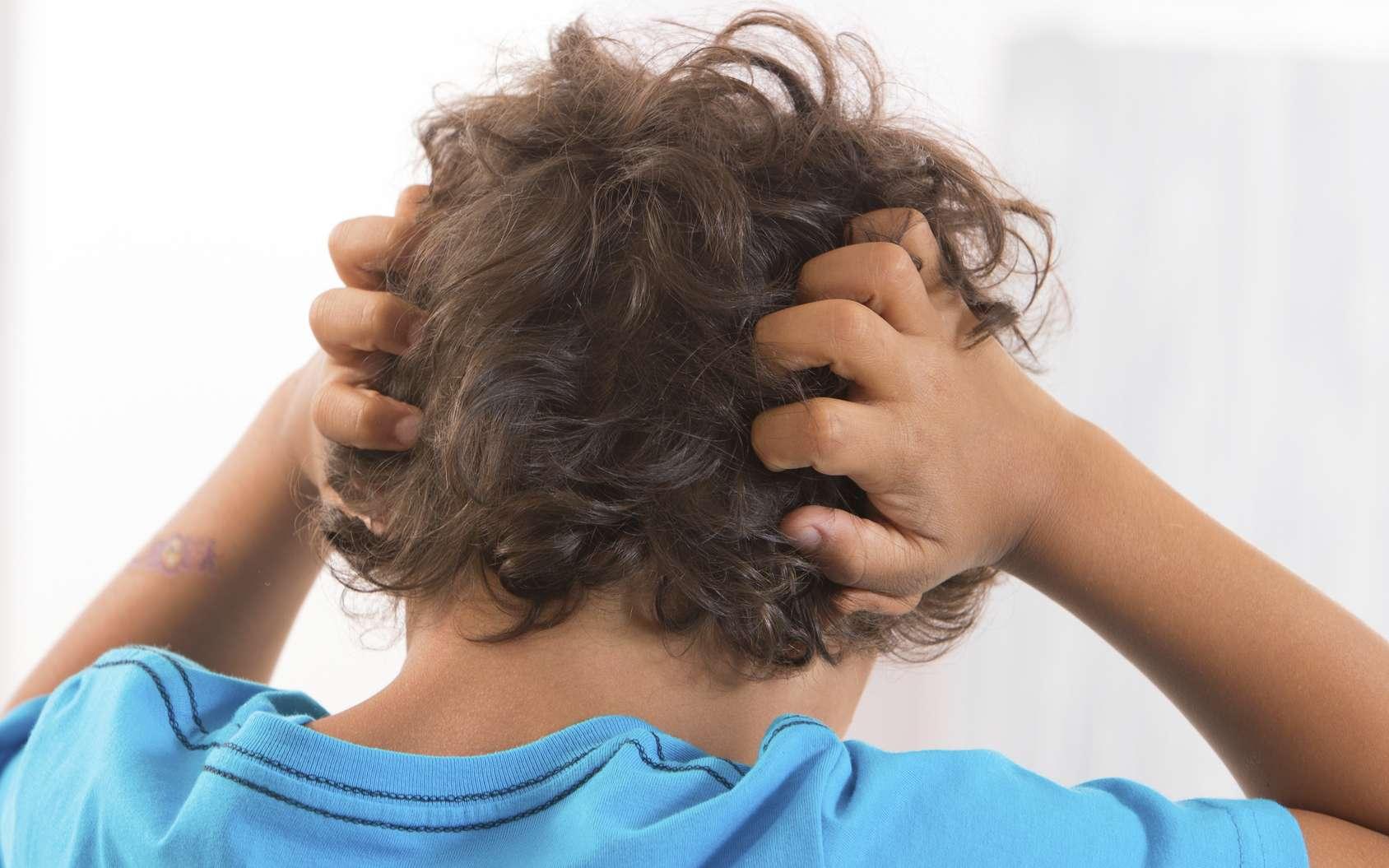 La teigne est une maladie du cheveu causée par un champignon. © JPC-PROD, Fotolia