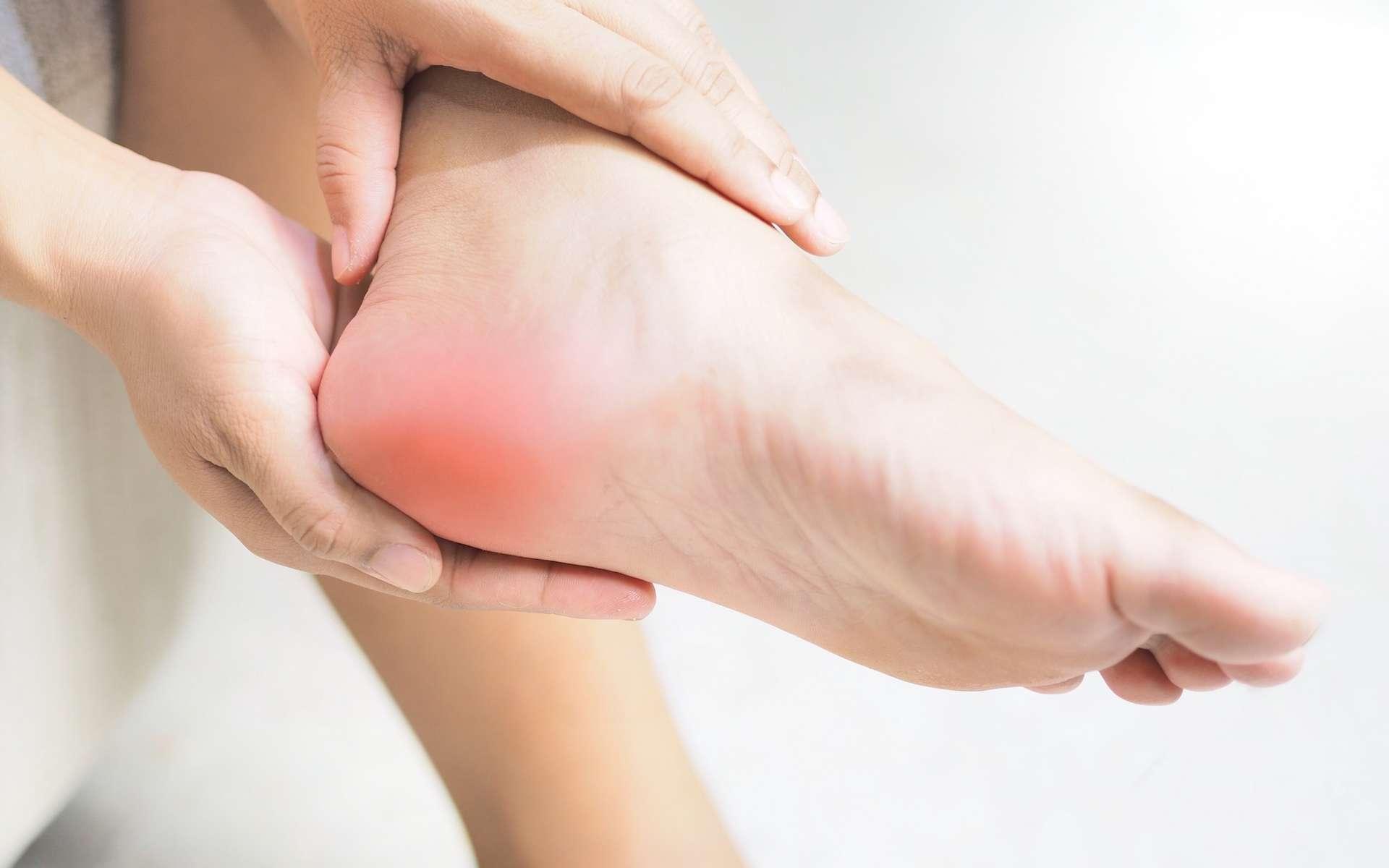 La maladie de Sever est une inflammation du cartilage au niveau de l'insertion du tendon d'Achille. © Tanapat Lek jew, Adobe Stock
