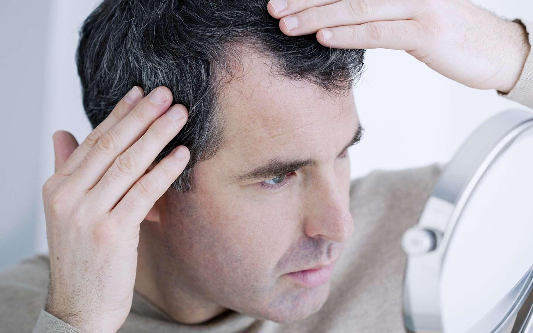 Quelques gouttes d'huile essentielle de bois de santal seraient-elles suffisantes pour faire pousser nos cheveux? Des chercheurs ont lancé des essais cliniques. © RFBSIP, Fotolia