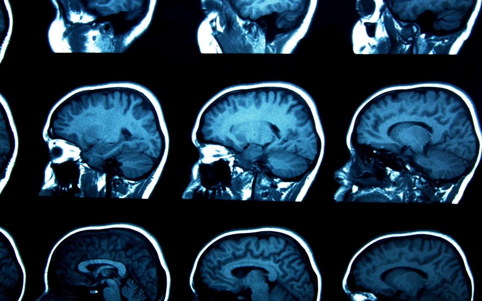 Le cancer du cerveau peut être détecté par IRM. © gmstockstudio, Fotolia