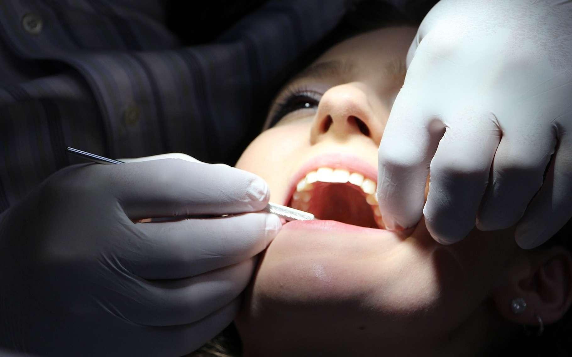 Le terme amalgame est notamment connu dans le secteur de la dentisterie où il désigne un matériau utilisé pour combler les trous laissés dans les dents après élimination de caries. © rgerber, Pixabay, DP