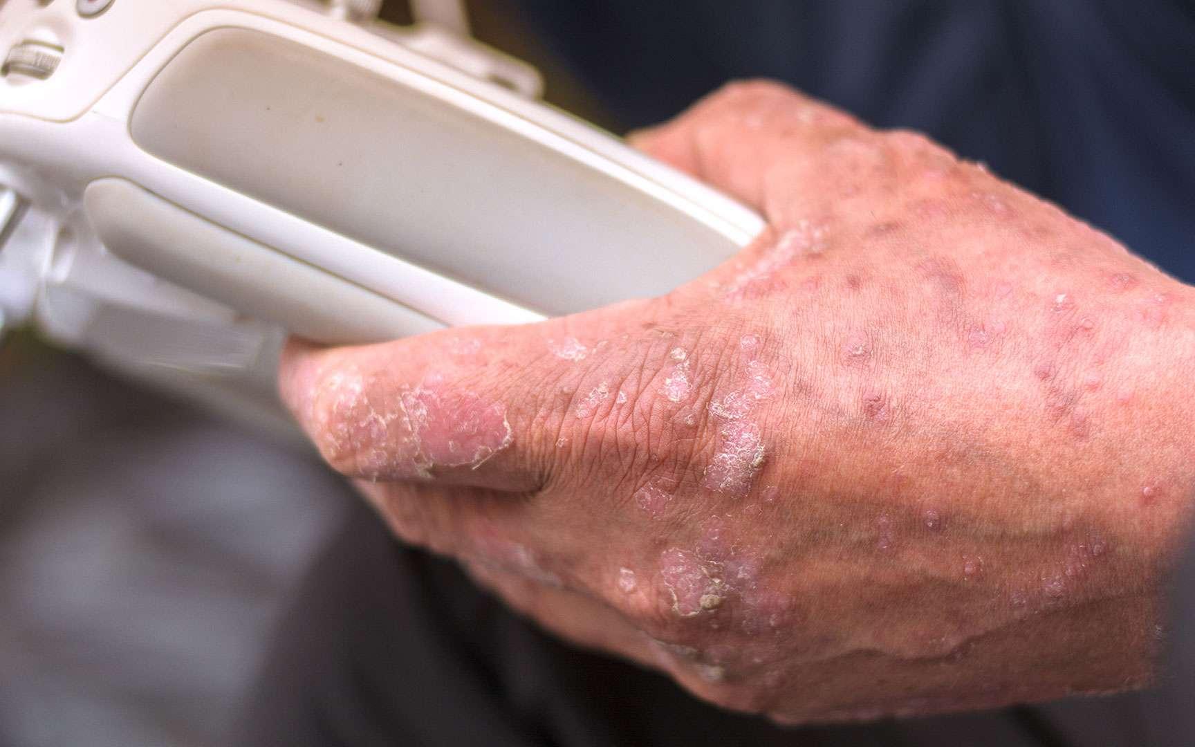 Quels traitements naturels contre l'eczéma ? Ici, eczéma de la main. © Pootsonnaja, Fotolia