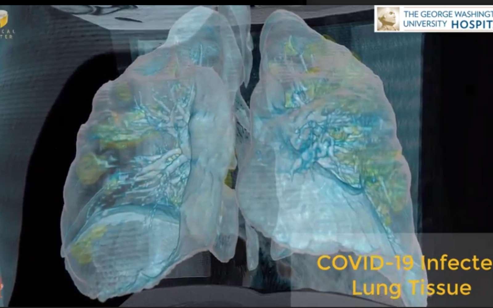 Pas besoin d'être un médecin pour visualiser les dégâts sur les poumons d'un malade du Covid-19 grâce à la VR. © George Washington University Hospital