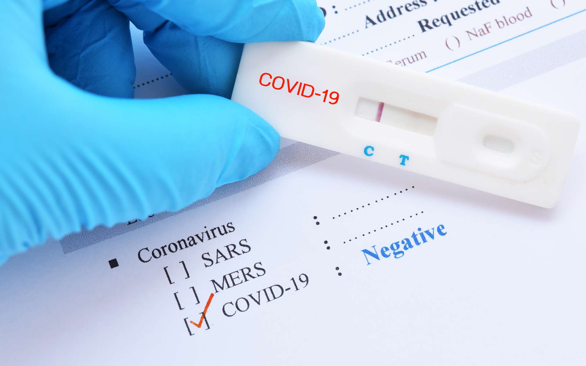 Que vaut la fiabilité des tests du SARS-Cov-2 ? © jarun011, Adobe Stock