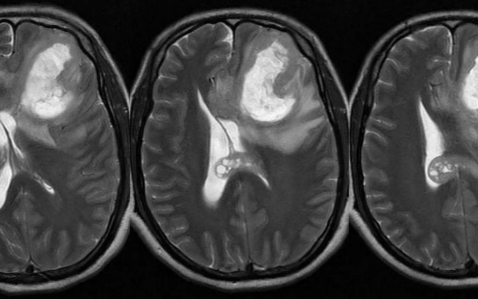 IRM d'un patient de 55 ans, atteint de glioblastome multiforme. © Dr Balaji Anvekar