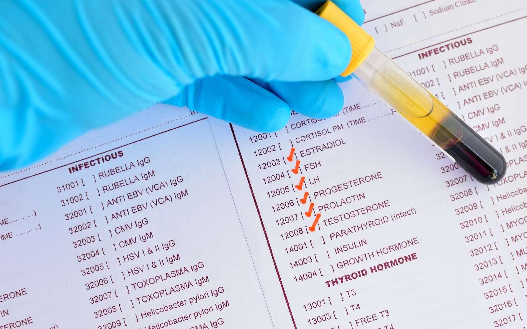 Un bilan hormonal permet de détecter des causes d'infertilité. © jarun011, Fotolia