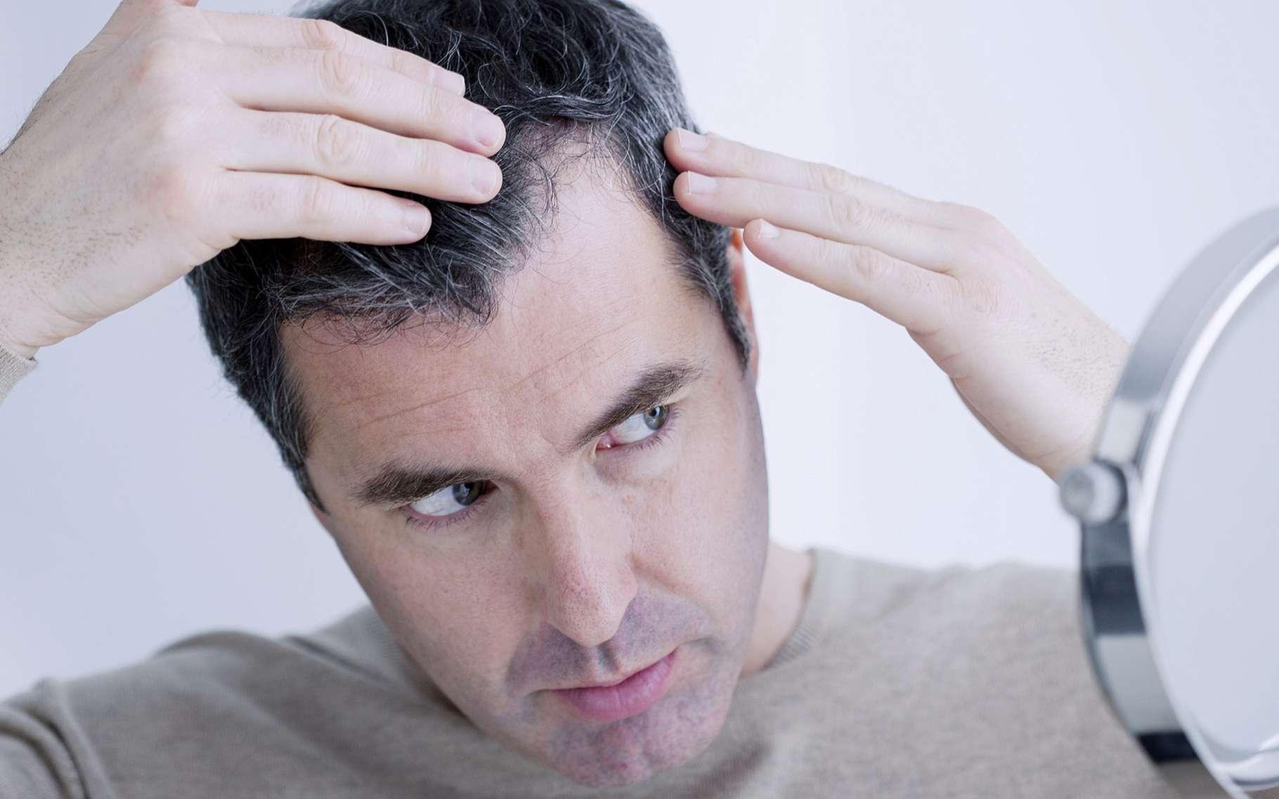 L'impression de cheveux pourrait bientôt voir le jour. Certains imaginent déjà utiliser cette avancée technologique pour imprimer perruques et extensions. Pourtant, l'objectif visé par les chercheurs du Massachusetts Institute of Technology (MIT) est plutôt de créer de nouveaux matériaux fonctionnels. © Image Point Fr, Shutterstock