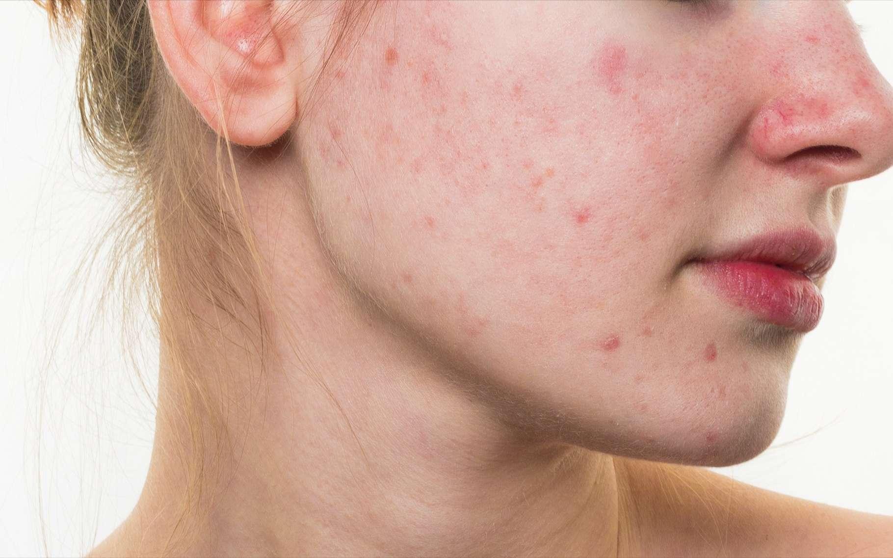 L'acné est souvent difficile à vivre pour les ados et les jeunes adultes. Mais elle pourrait être le signe d'une peau qui vieillira moins vite. © Loginova Elena, Shutterstock