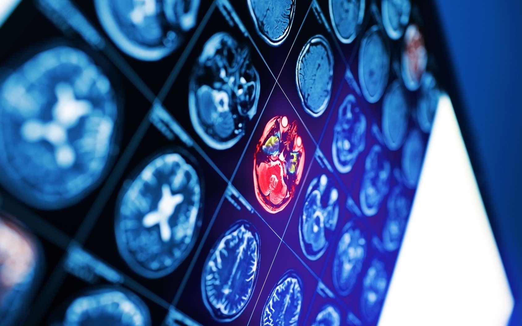 Le cerveau des femmes resterait plus jeune que celui des hommes, du point de vue du métabolisme. © sudok1, Fotolia