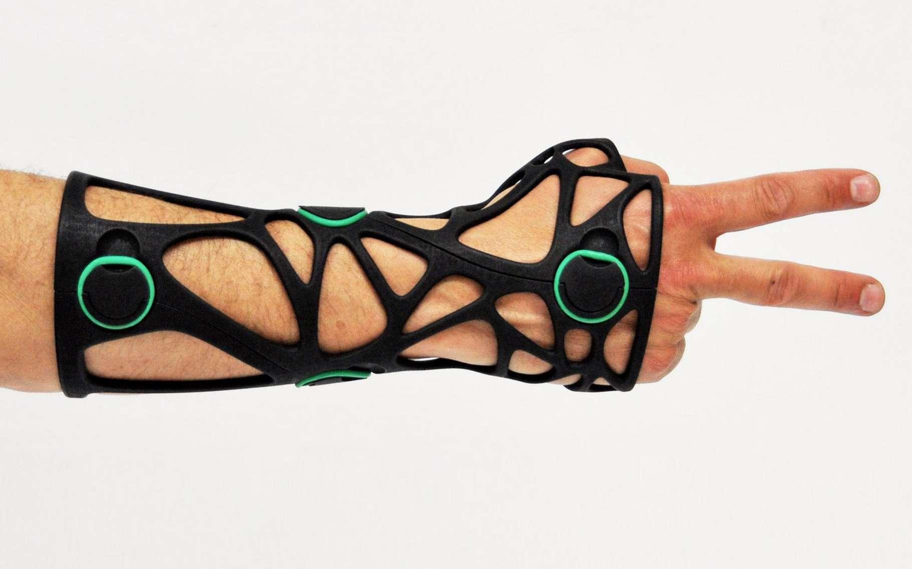 La technique de fabrication des plâtres médicaux a peu évolué. L'impression 3D ouvre une piste très prometteuse pour apporter plus de confort aux patients souffrant de fractures. © Xkelet