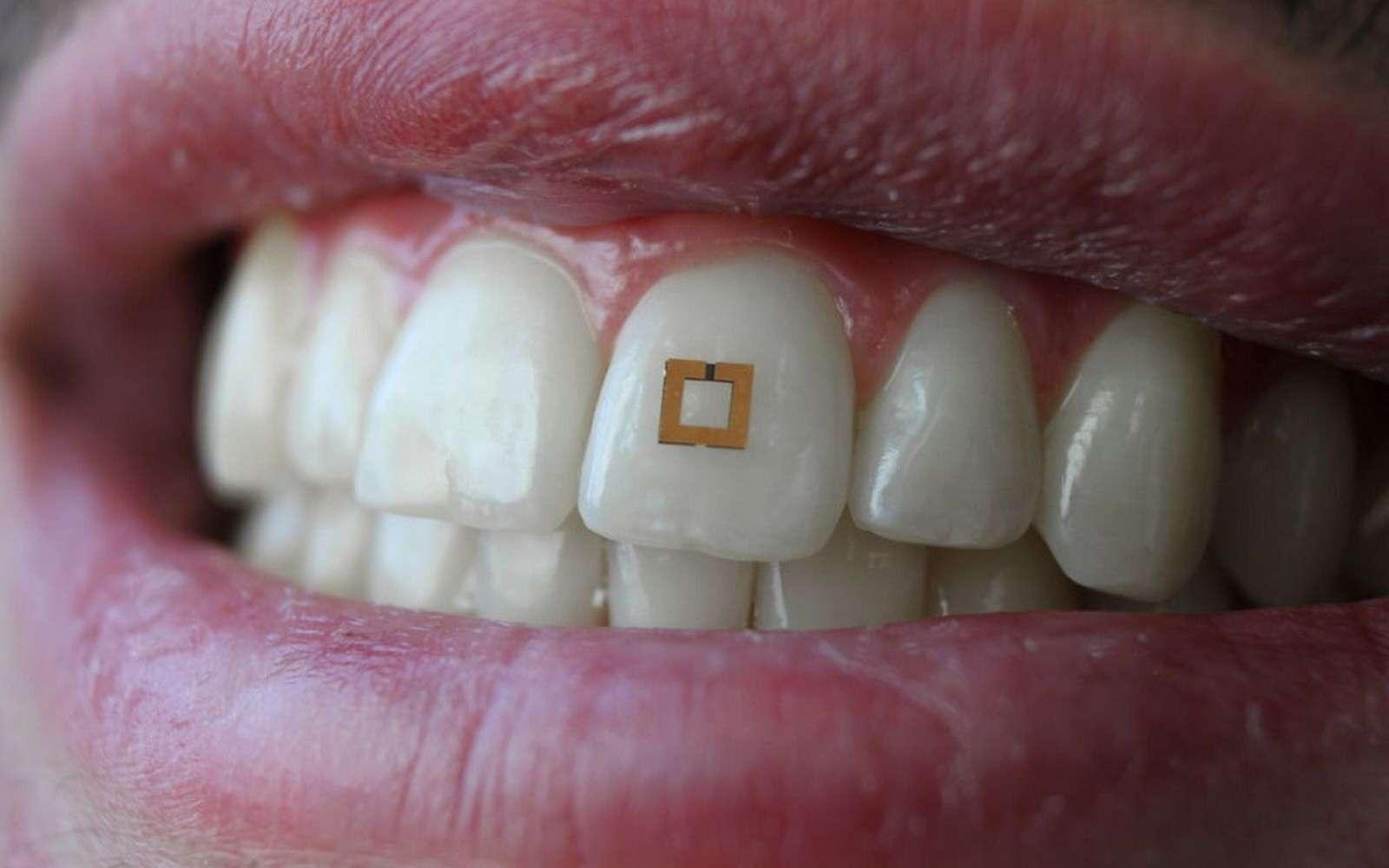 Le capteur dentaire est composé de trois couches et fonctionne comme une étiquette électronique. © SilkLab, Tufts University