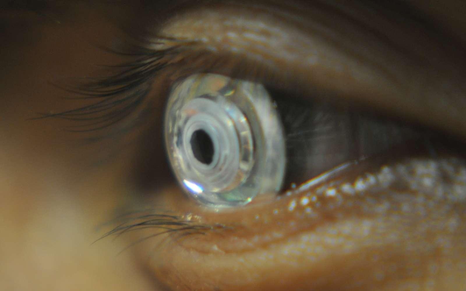 En clignant deux fois des yeux, le porteur des lentilles modifie la longueur focale, et ainsi active le zoom. © UC San Diego
