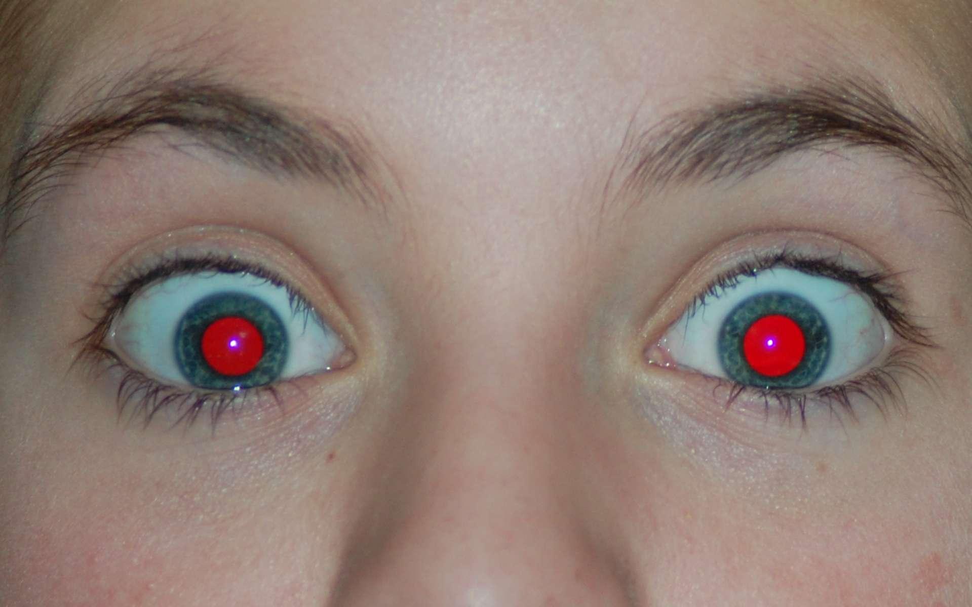 L'effet yeux rouges se produit lorsque la lumière du flash d'un appareil photo vient frapper le fond de l'œil. © PeterPan23, Wikipedia, DP