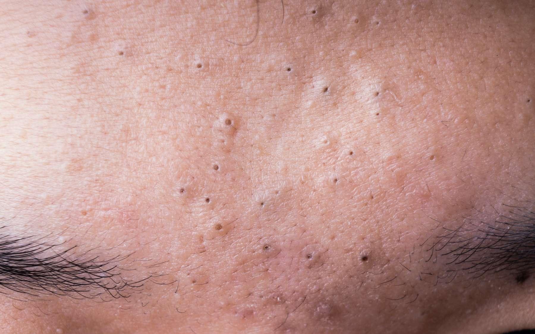 Le comédon est un amas de graisse et de cellules mortes bouchant les pores cutanés. © ThamKC, Adobe Stock