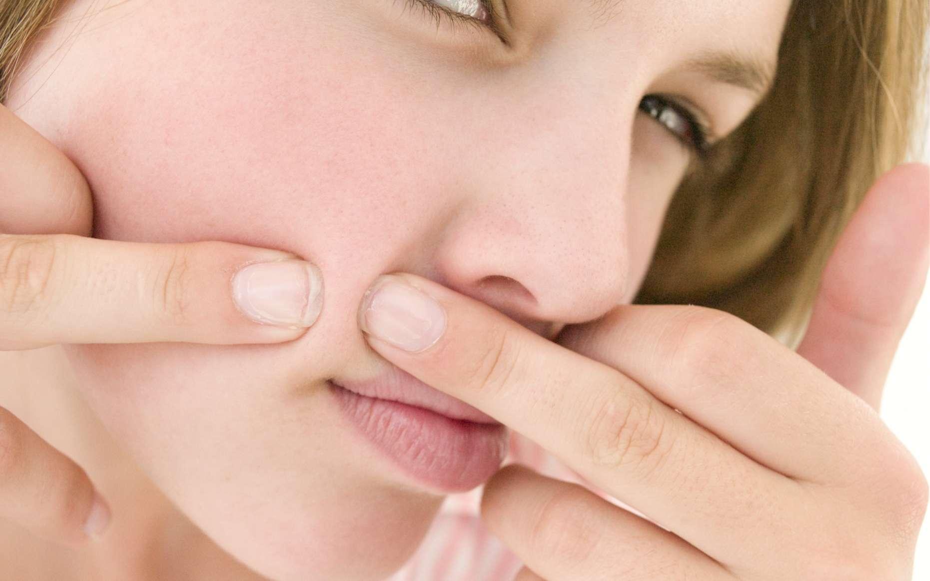 Les antiacnéiques permettent de réduire les manifestations de l'acné. © Phovoir