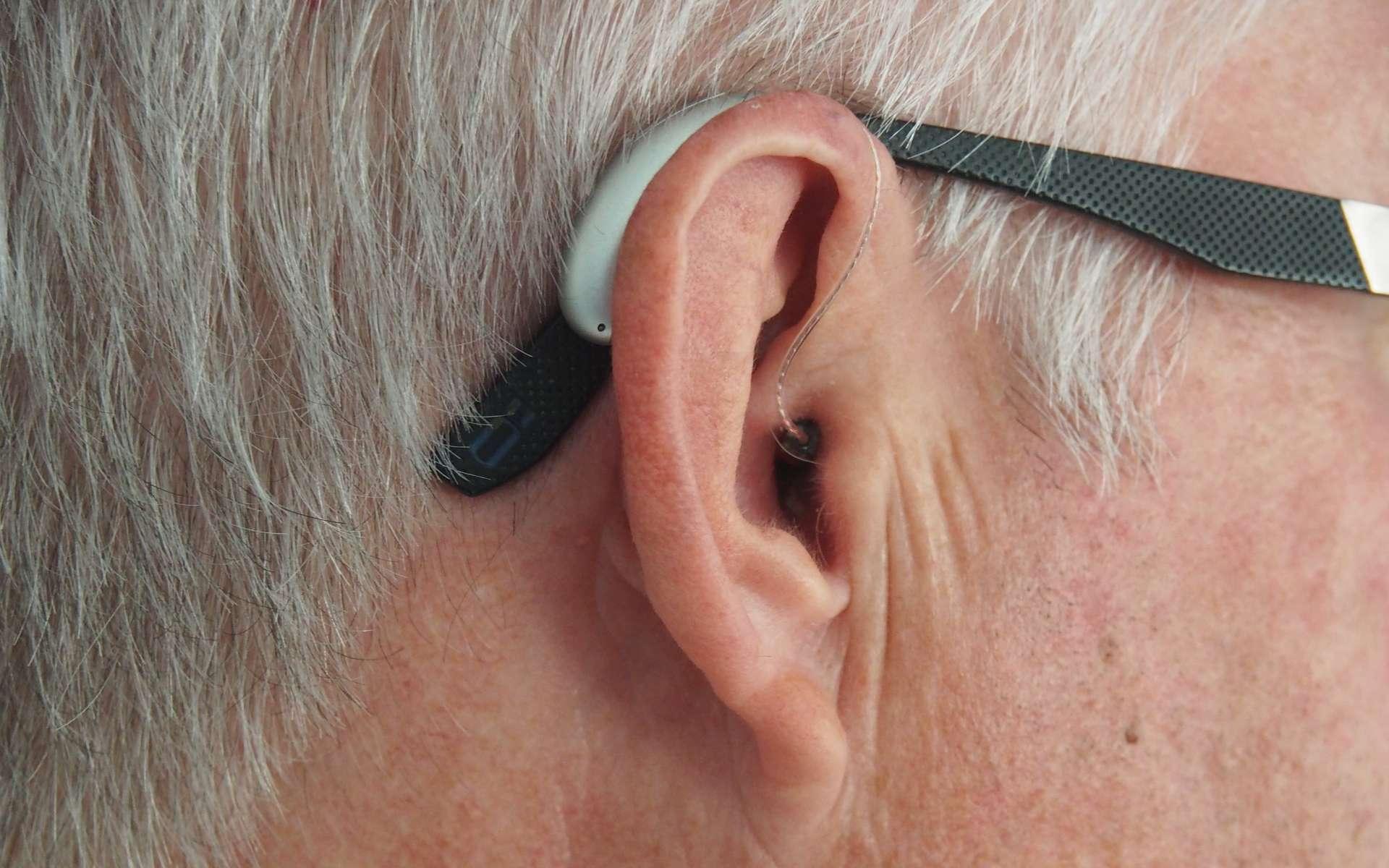 La baisse auditive toucherait quelque six millions de personnes en France. © Mark Paton, Unsplash