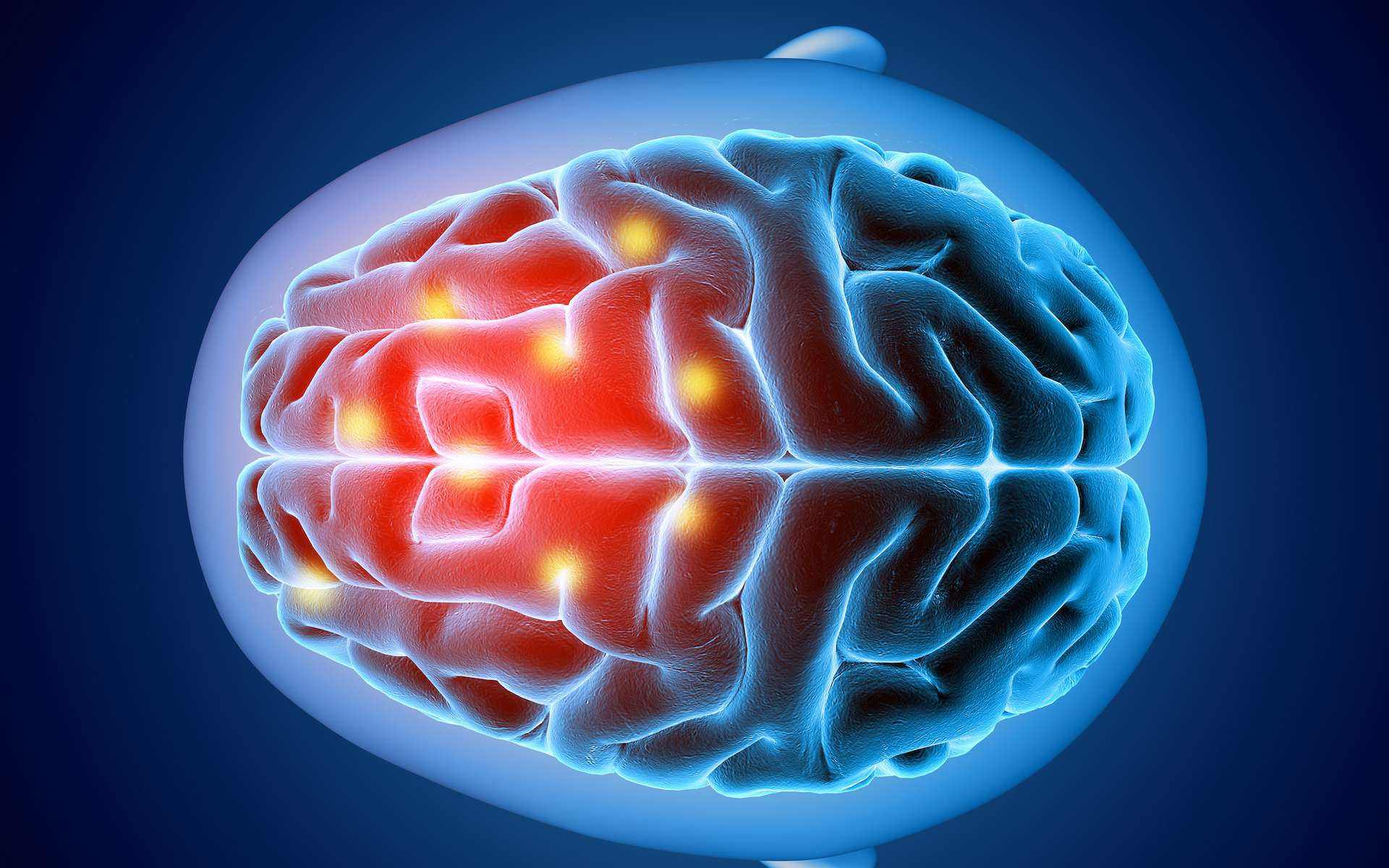 La maladie de Pick est liée à l'accumulation dans le cerveau de protéines Tau anormales appelées «corps de Pick». © Kirsty Pargeter, Adobe Stock