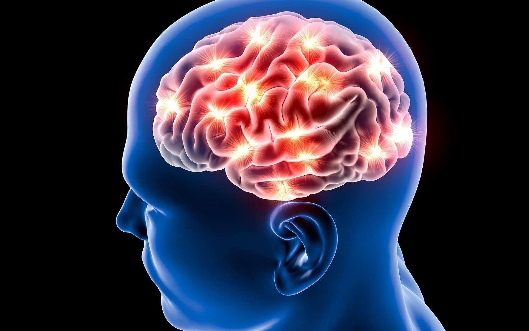 Dans les cerveaux de patients souffrant de maladie d'Alzheimer se forment des plaques amyloïdes. De telles structures ont été retrouvées chez des patients ayant eu une greffe de dure-mère. © Naeblys