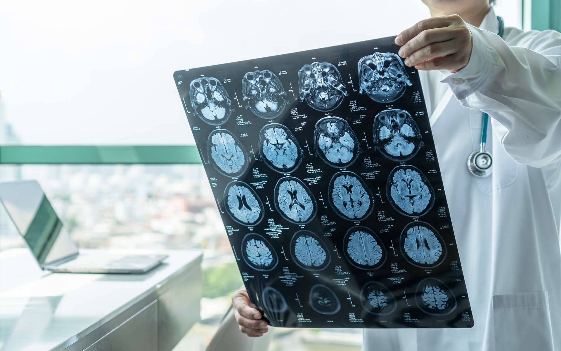 Se pourrait-il que le coronavirus, responsable du Covid-19, affecte aussi le cerveau ? © chinnapong, Adobe Stock