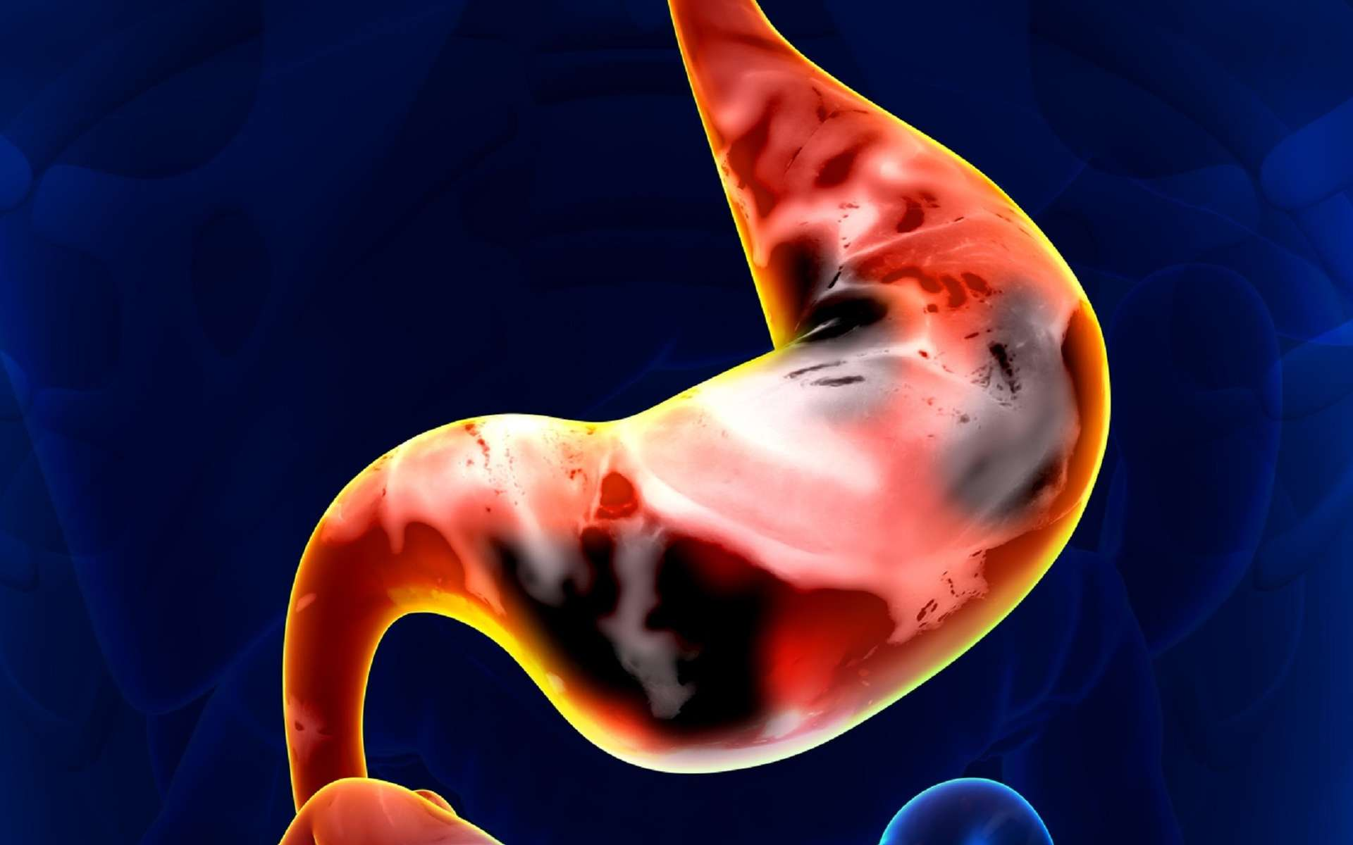 Le cancer de l'estomac touche plus d'hommes que de femmes. © decade3d, Fotolia