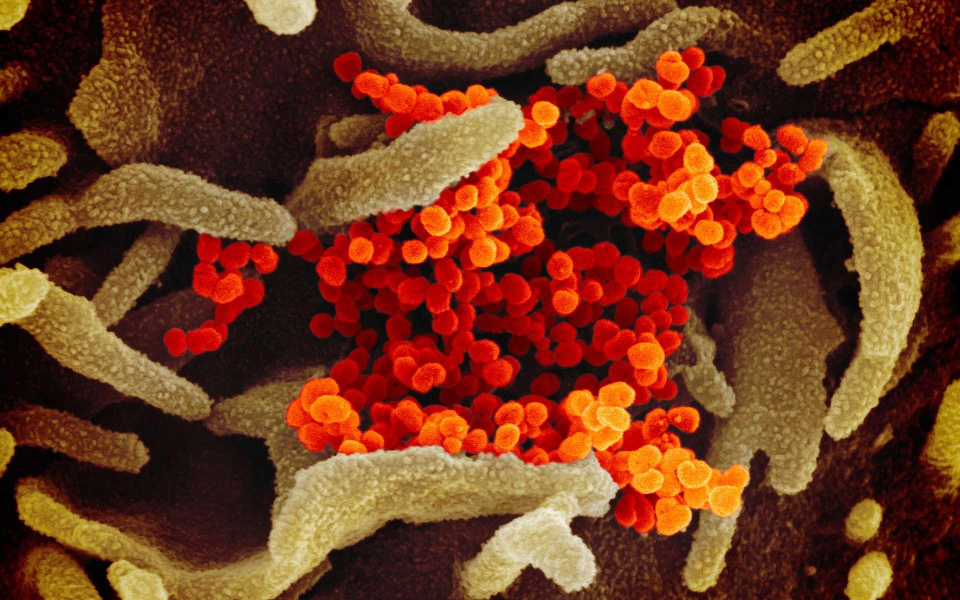 Le virus Sars-CoV-2 photographié au microscope électronique à balayage. Les couleurs ont été ajoutées par ordinateur. Les virions apparaissent en orange. © Niaid-RML