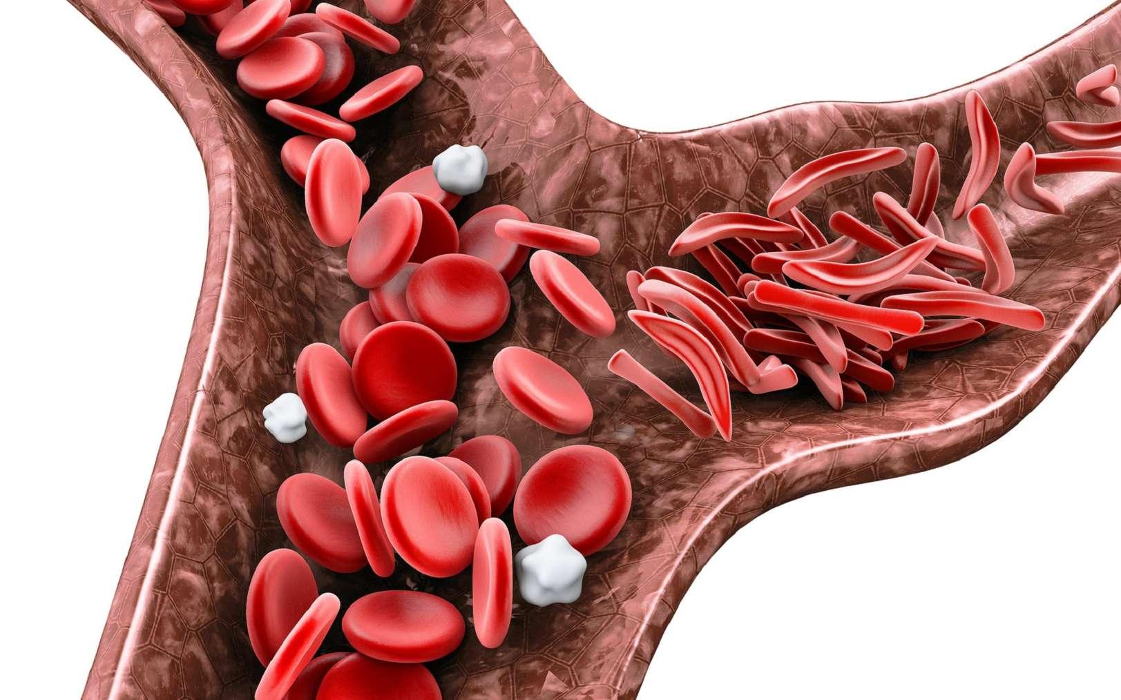 Dans la drépanocytose, les hématies (globules rouges) peuvent prendre une forme en faucille. © tussik, Fotolia