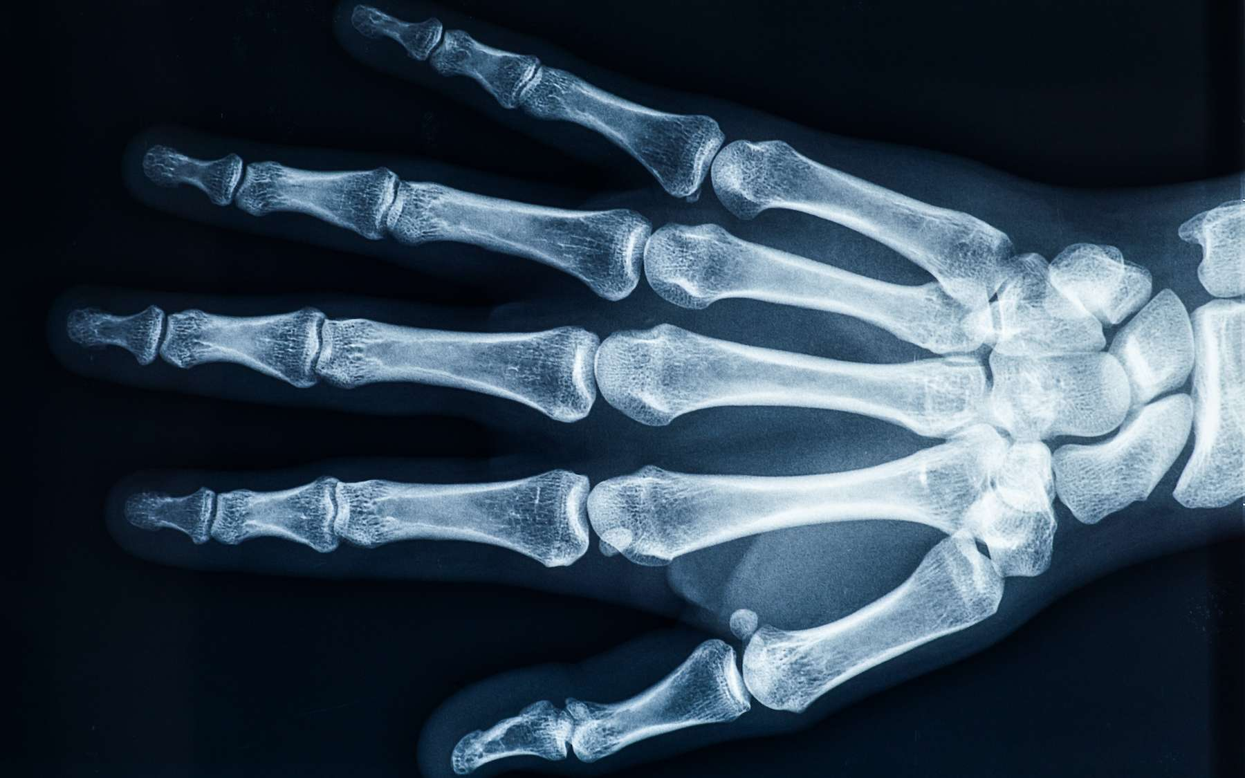 Le squelette de la main compte 27 os. © Matthieu, Adobe Stock