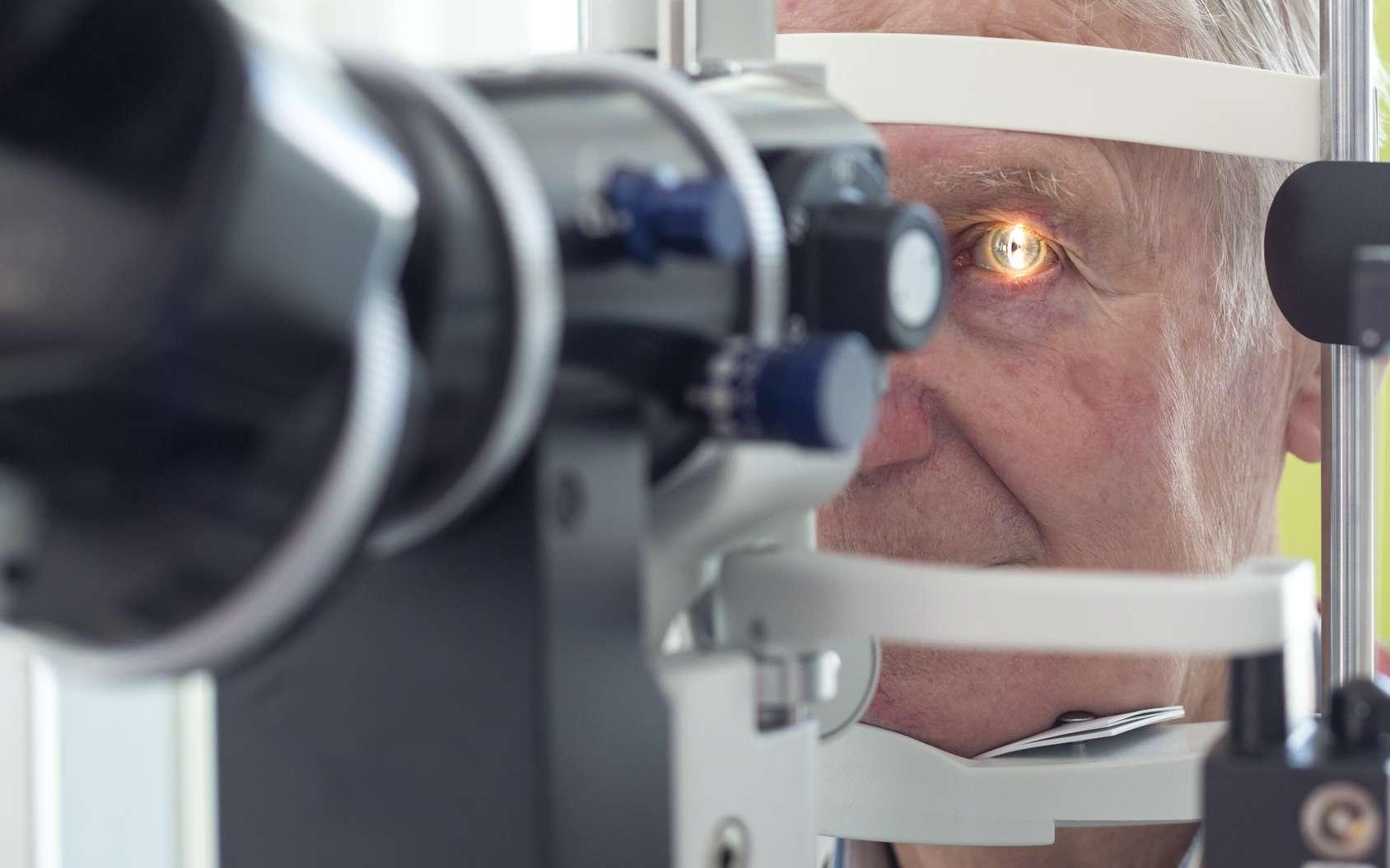 La cataracte est liée à l'opacification du cristallin. © mmphoto, Fotolia