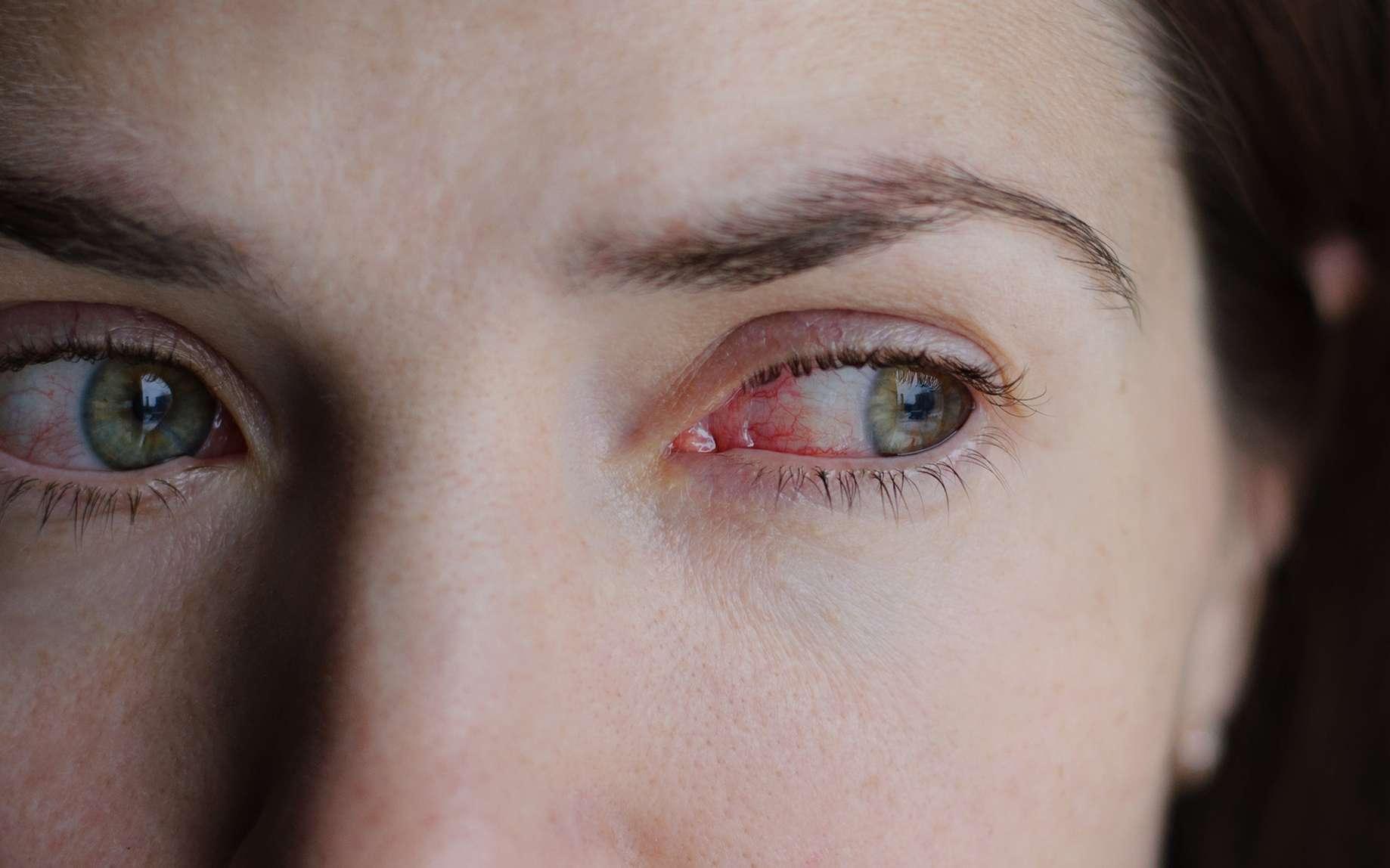 La conjonctivite peut être d'origine allergique, virale bactérienne ou irritative. © domaskina, Fotolia